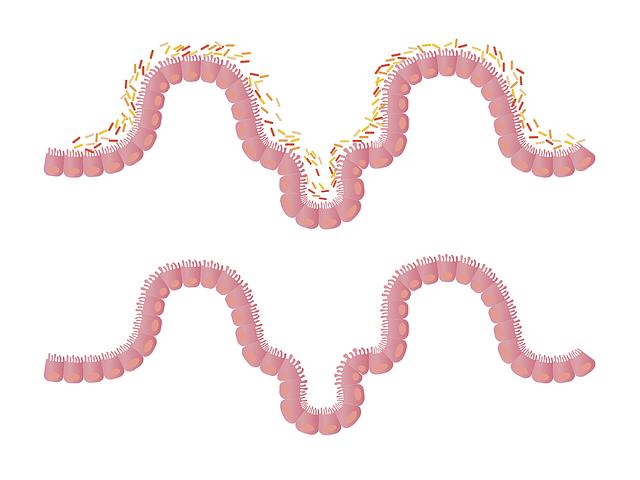 lactobacillus rhamnosus gg