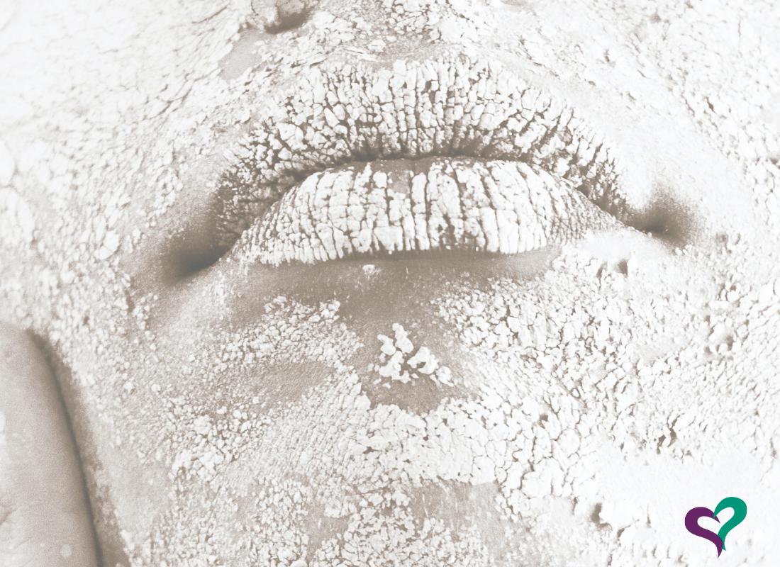 Causas de los labios secos y agrietados